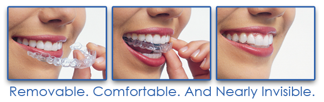 Image result for INVISALIGN BRaces