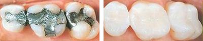 Tooth Colored Fillings San Jose