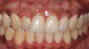 Gum Bleaching, Depigmentation San Jose