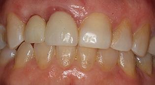 Dental Implants San Jose