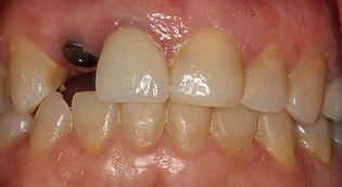 San Jose Dental Implants
