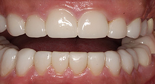 San Jose Dental Veneers