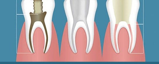 Facts to know about root canal therapy