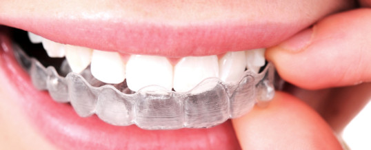 Is Invisalign the right option for you?