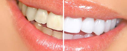 What are the five most typical Cosmetic dental procedures?