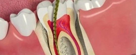 Root Canal Treatment in San Jose